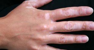 صور علاج البرص بالحبة السوداء , طرق واسباب مرض البرص