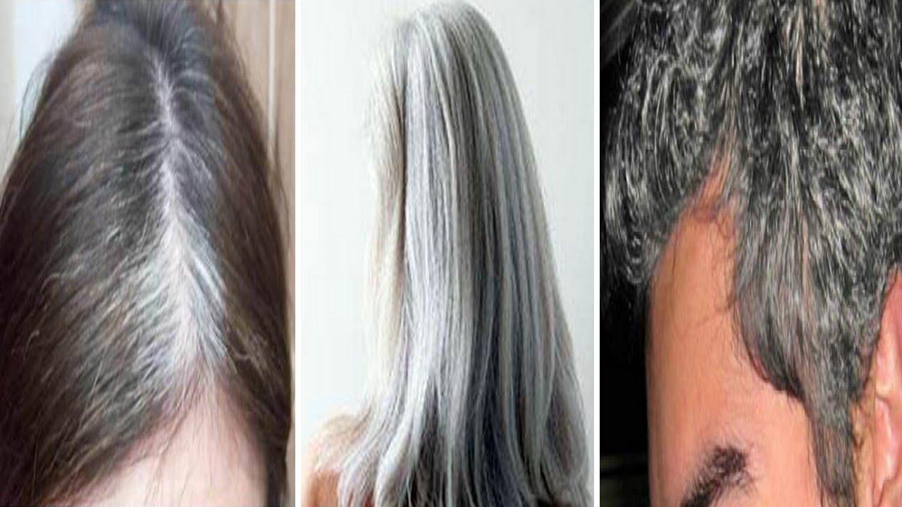 بالصور التخلص من الشعر الابيض في يومين , تحويل الشعر الابيض الى اسود مرة اخرى 3553 1