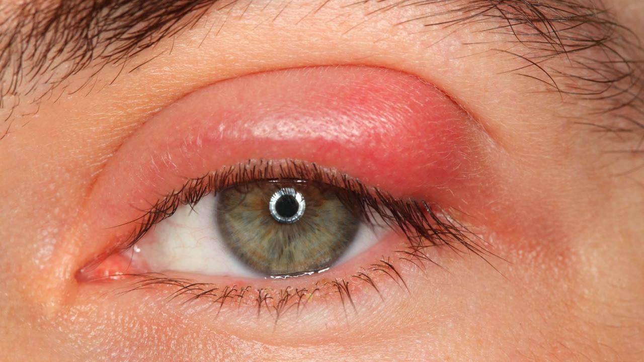 صورة علاج الام العين بالاعشاب , طرق علاج التهابات العين بالاعشاب الطبيعيه