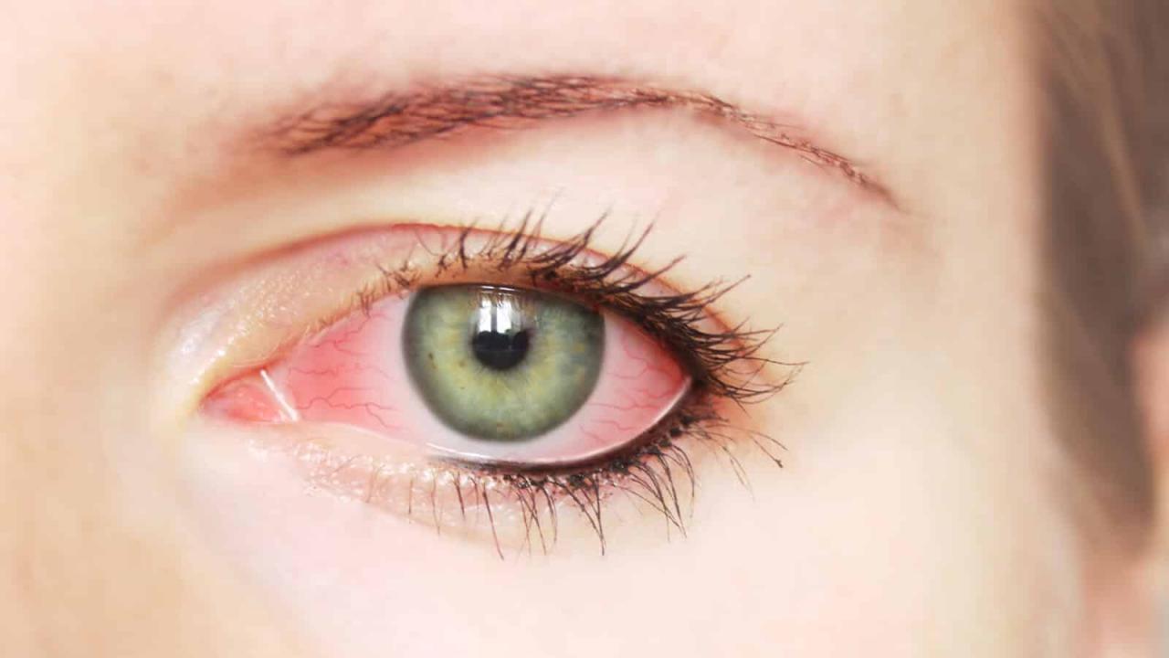 بالصور علاج الام العين بالاعشاب , طرق علاج التهابات العين بالاعشاب الطبيعيه 2060 2