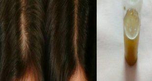 صورة فوائد زيت حصا البان للشعر , علاج مشاكل الشعر بزيت حصا البان