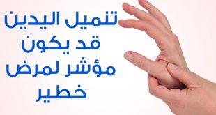 بالصور علاج التنميل في الجسم , تعرف علي اسباب التنميل وعلاجها 2539 3 310x165