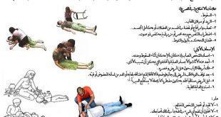 بالصور اسباب مرض الصرع , ما هي اعراض مرض الصرع ؟ 4702 3 310x165