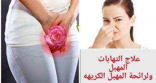 بالصور علاج الالتهابات المهبلية , اسباب التهابات المهبل وطرق علاجها والوقايه منها 2214 3 310x165