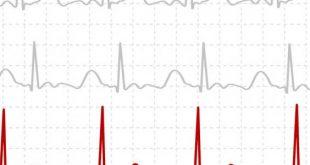 صور هل تخطيط القلب يكشف انسداد الشرايين , استخدامات و انواع تخطيط القلب