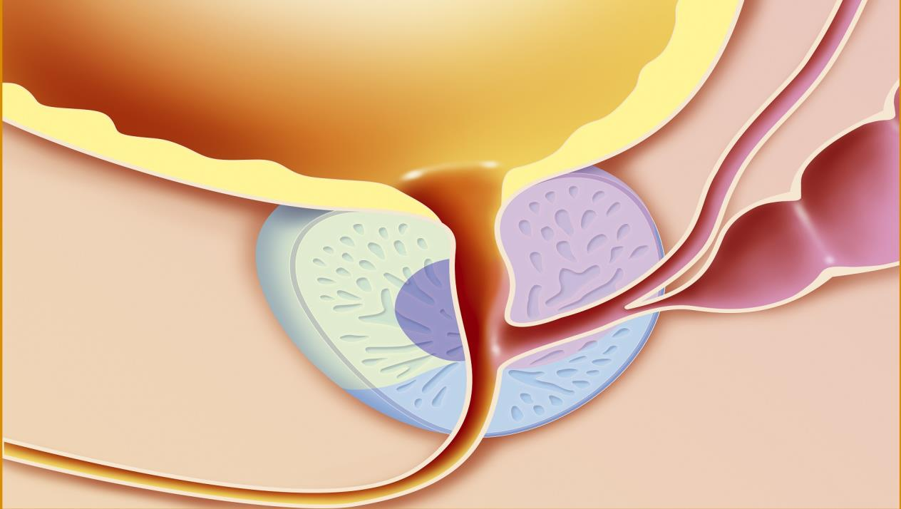 بالصور مدة علاج التهاب البروستاتا المزمن , ما هو اعراض التهاب البروستاتا 2337 1