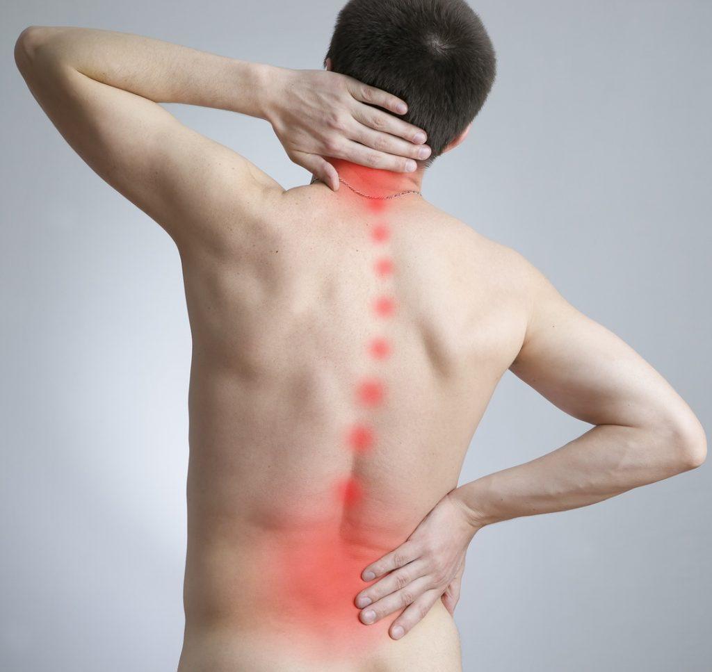 صورة علاج الجنف بالحجامة , ما هو الجنف وكيفيه علاجه