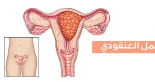 صور ماهو الحمل العنقودي , تعريف الحمل العنقودى
