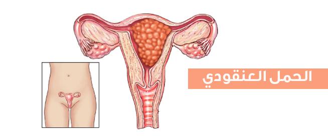 صورة ماهو الحمل العنقودي , تعريف الحمل العنقودى