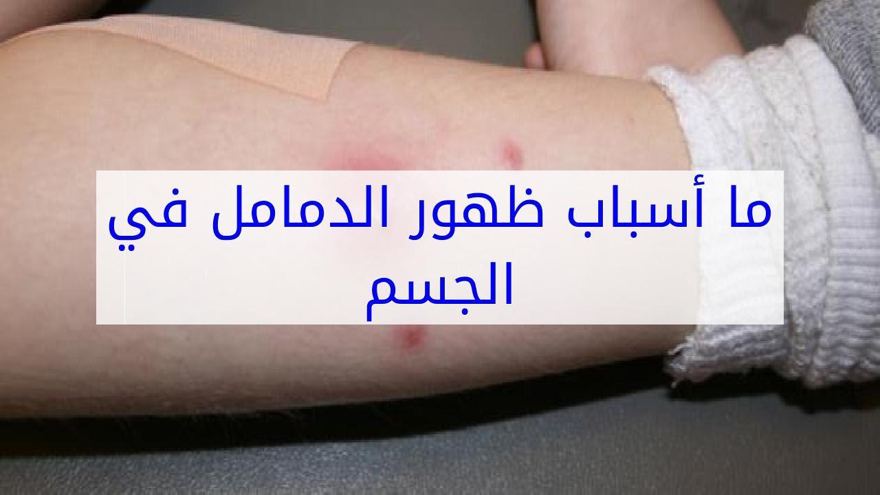 صورة اسباب كثرة الدمامل , طريقه ازى نعالج الدمامل