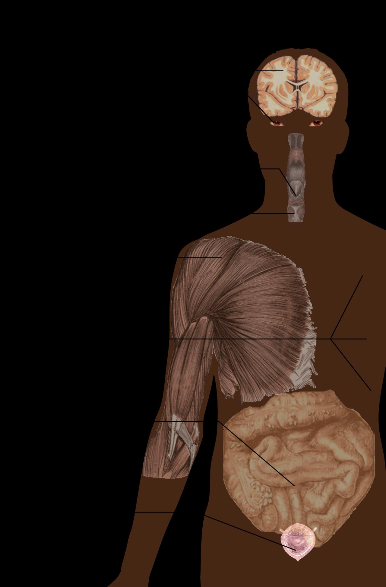 صور اعراض التصلب المتعدد , امراض الجهاز العصبى المتعدده