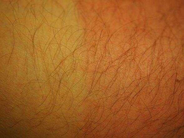 صور شعر الجسم في المنام للمراه , كثرة شعر جسم المراة في المنام