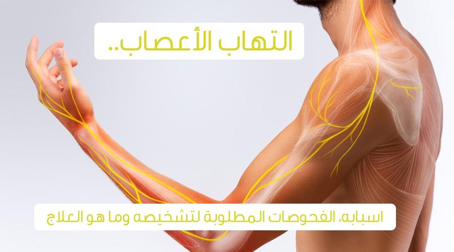 صورة اعراض التهاب العضلات والاعصاب , اعراض توضح لك انها من الاعصاب