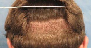 صور بعد زراعة الشعر , خطوات مابعد زراعه الشعر واعادة النمو