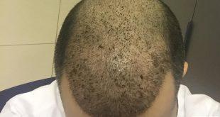 صور تجربة زراعة الشعر في تركيا بالصور , بعض صور لتجارب زراعه الشعر في تركيا