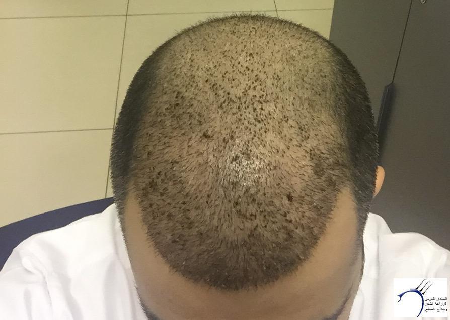 صورة تجربة زراعة الشعر في تركيا بالصور , بعض صور لتجارب زراعه الشعر في تركيا