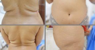صور بالصور عملية شفط الدهون , صور مراحل عملية شفط الدهون
