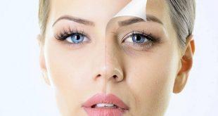صورة علاج الهالات السوداء تحت العين , كيف اتخلص من الهالات السوداء