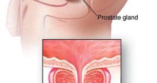 التهاب البروستاتا اعراض , الرجال الذين يعانون من التهاب البروستاتا