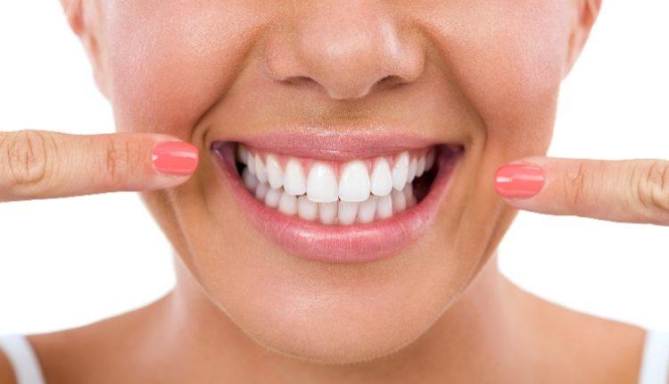 صورة اسرع طريقة لتبييض الاسنان الصفراء , مكسوف من شكل سناني وعايز حل