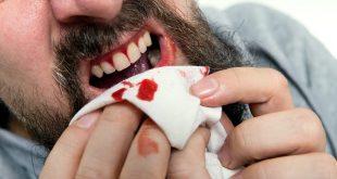 صورة حلم خروج الدم من الفم , حلمت ان فيه دم بينزل من فمي