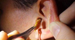 صورة افضل طريقة لتنظيف الاذن , نصائح لتنظيف اذنيك بامان 3556 2 310x165