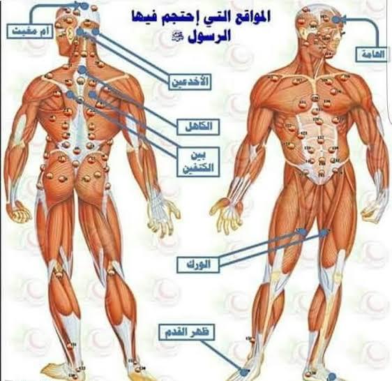 صورة اماكن الحجامة في الجسم , تعرف الي مواضع و اماكن الحجامة في الجسم