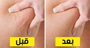 صورة طرق للتخلص من السيلوليت , علاج السيلوليت