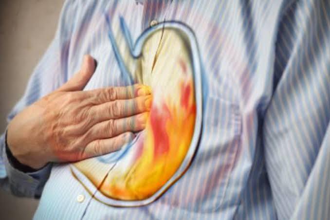صورة الحموضة في المعدة , علاج الحموضه في المعدة