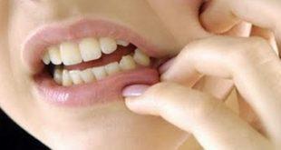 صورة علاج الام الاسنان , اوجاع الاسنان الصعبة