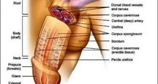 صورة علاج اعوجاج الذكر بدون جراحة , مشاكل في الذكر