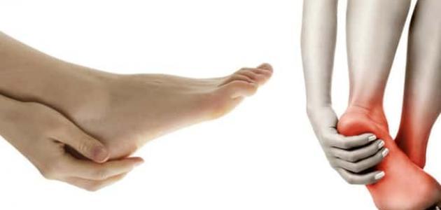 صورة علاج انسداد الشرايين في الرجل بالاعشاب , عالج انسداد الشرايين بالطب البديل