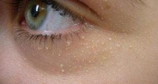 صورة علاج الحفر تحت العين , عندي مشاكل تحت عيني