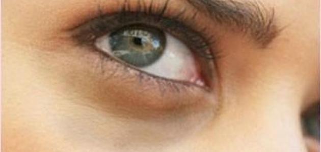صورة طريقة التخلص من السواد تحت العين , عندي هالات سودا كتير