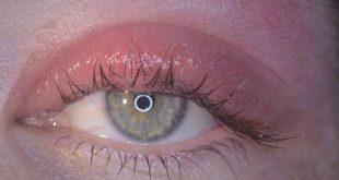 صورة الم حول العين , حوالين عيني بيوجعني