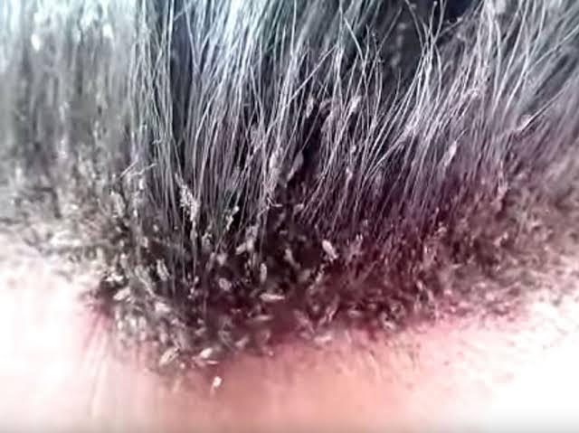 صورة تفسير حلم بالقمل , الحلم بحشرات الشعر