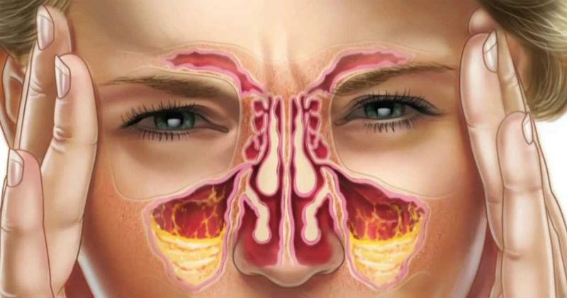 صورة حساسية الانف المزمنة , امراض الانف في الشتاء