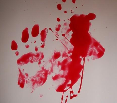 صورة خروج الدم من المهبل في المنام , حلمت ان فيه دم خارج من مهبلي