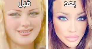 صورة تغير ملامح الوجه , علامات تغير الوجه