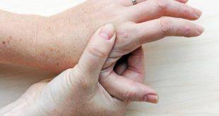 صورة اعراض داء النقرس , اعرف اكثر عن مرض النقرس