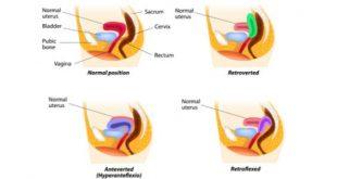 صورة اسباب ميلان الرحم, اعراض الاصابة بميلان الرحم