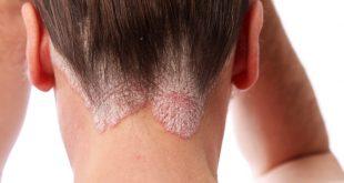 صورة اكزيما الشعر الدهنية, مشاكل الشعر للبشرة الدهنية وطرق علاجها
