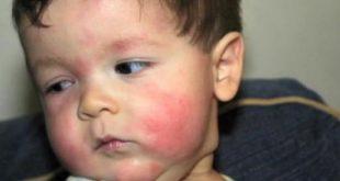 صورة الحساسية عند الاطفال, هل للوراثة دخل في الطفح الجلدي