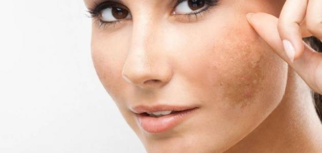 صورة علاج البقع البنية في الوجه بالاعشاب, للحصول علي بشرة صافية ونقية