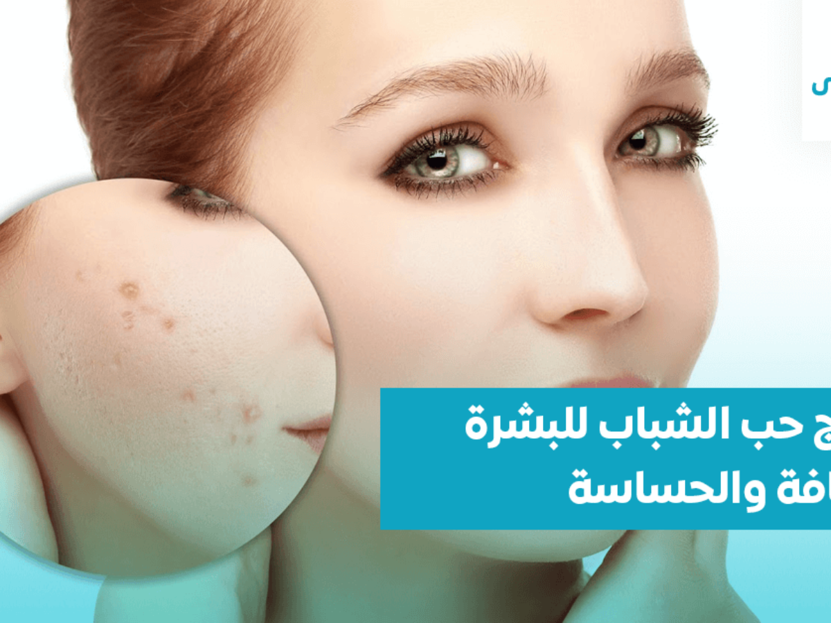 صورة كيفيه التعامل مع البشرة الحساسه جدا , علاج البشرة الجافة والحساسة 967