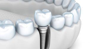 كم تكلفة زراعة الاسنان