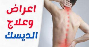 اعراض مرض الديسك