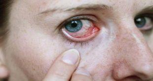 اعراض حساسية العين