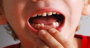صورة في المنام سقوط الاسنان 545 1 310x165